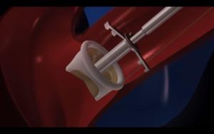 valve copy